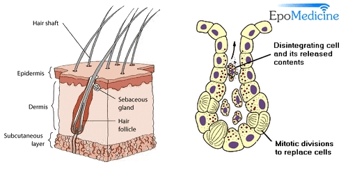 Diagram of skin layers, showing the location of the sebaceous gland, epidermis, and hair follicle